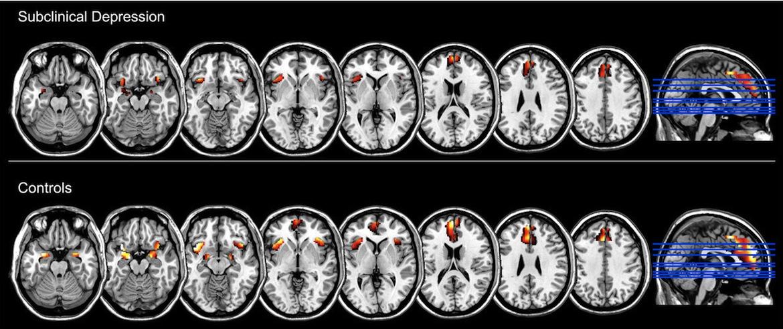 Patterns of depression