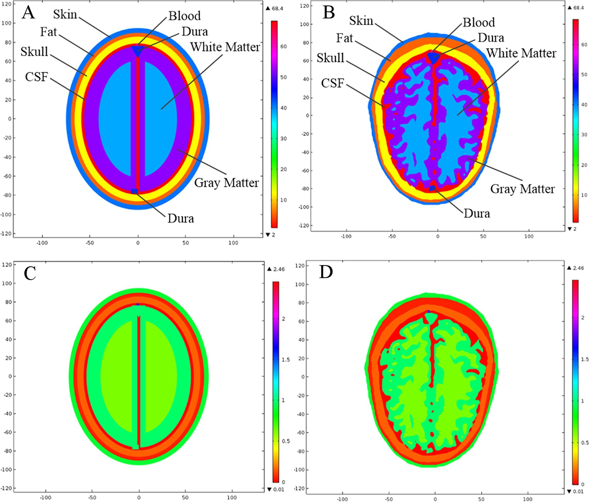 Microwave scattering from human head models for brain stroke detection