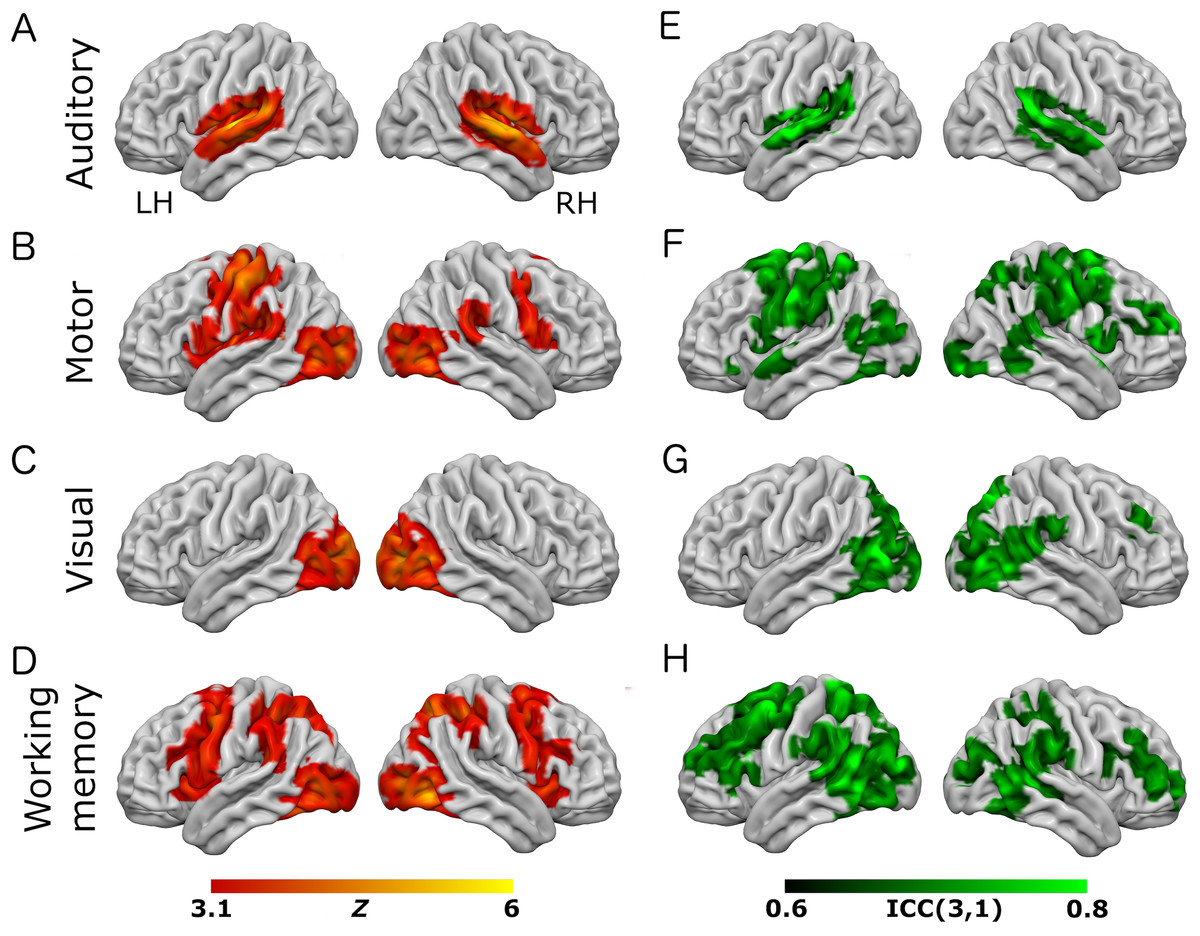 A short, robust brain activation control task optimised for pharmacological fMRI studies